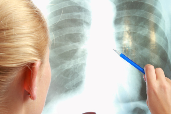 A evolução do câncer de pulmão no país