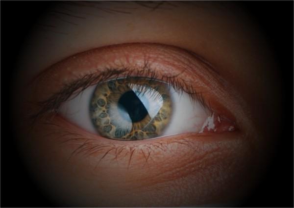 Glaucoma tratamento é tardio em 80 porcento dos casos