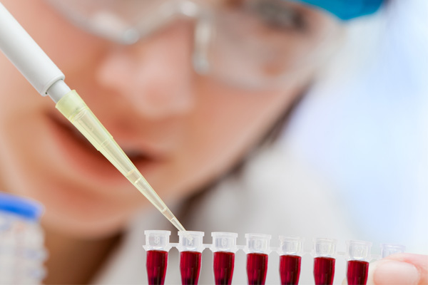 Novo teste para o diagnóstico do câncer de colo de útero não é unanimidade