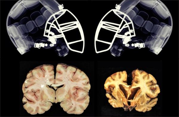 Estudos com jogadores de futebol americano confirmam danos cerebrais ... d0c16c1925872