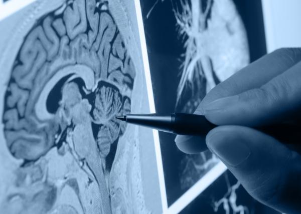 Hospital Moinhos de Vento previne declínio causado por doenças cerebrais