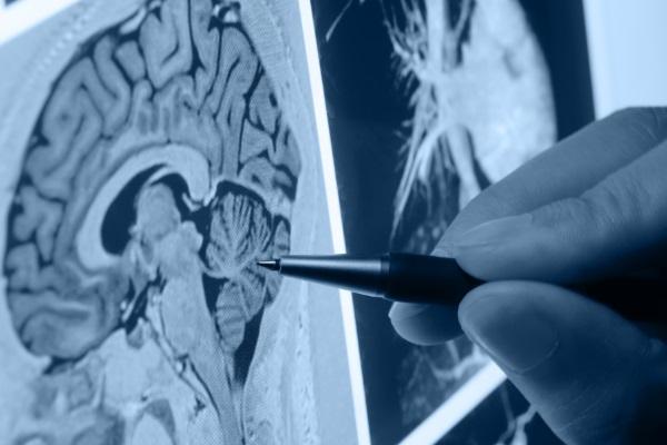 Pesquisa descobre anomalia na origem da doença de Parkinson