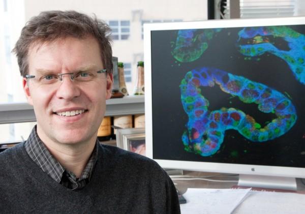 Células pancreáticas produtoras de insulina criadas a partir de células epiteliais humanas