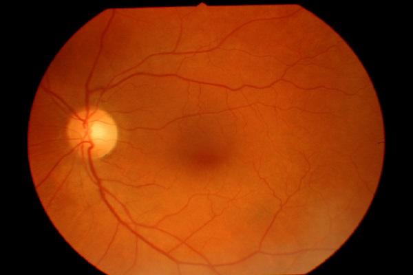 Tratamento se mostra promissor para degeneração macular, uma doença ocular grave