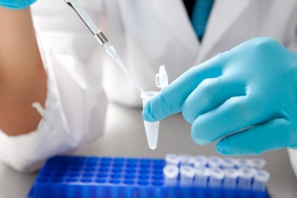 SUS começa a disponibilizar teste rápido para dengue e chikungunya