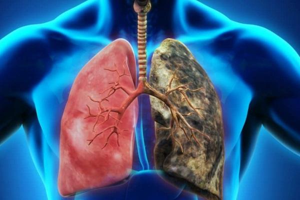 Santa Casa e Hospital da PUCRS desenvolvem estudo pioneiro sobre detecção de câncer de pulmão