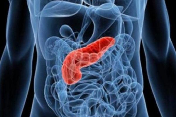 Câncer de pâncreas novo teste para detecção precoce da doença