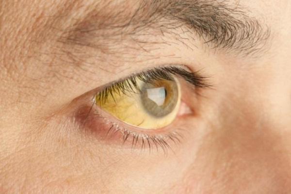 Febre Amarela vacinação estendida para todo o RS