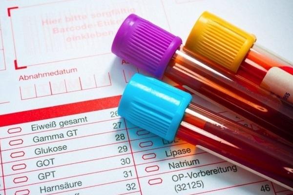 Primeiro exame de sangue para diagnosticar uma concussão é aprovado nos EUA