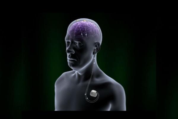 Uso de marca-passo cerebral no tratamento do Alzheimer