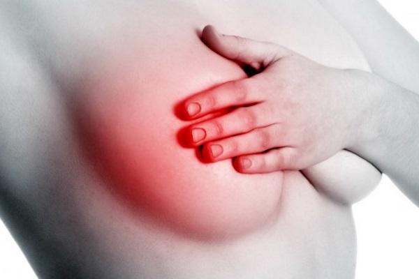 Câncer de mama Quimioterapia pode ser evitada no estágio inicial em algus casos