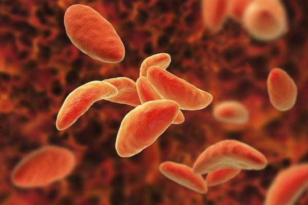 Surto de toxoplasmose em Santa Maria pode ter como possíveis origens água e hortaliças