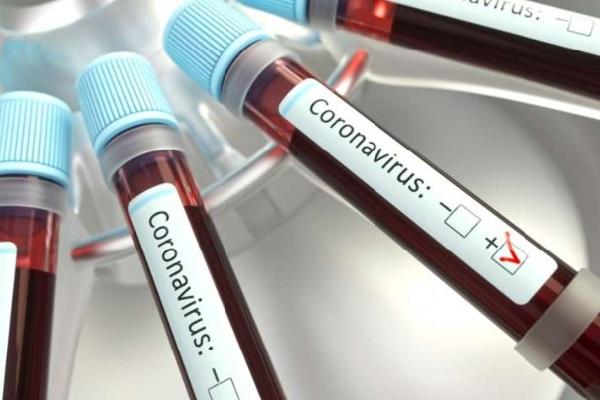 Saúde amplia testes para profissionais de saúde e segurança