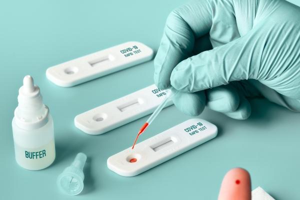 ANS determina inclusão de teste sorológico no Rol de Procedimentos