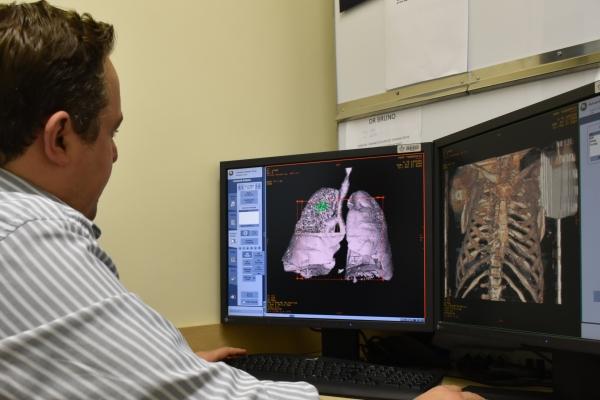 Ferramenta que analisa exames de imagens irá ampliar a participação de pacientes da Santa Casa em pesquisas clínicas