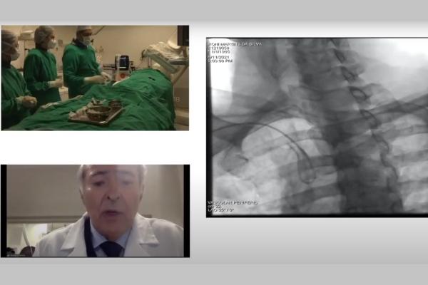 Hospital Moinhos realiza procedimento vascular com transmissão ao vivo para profissionais de Medicina