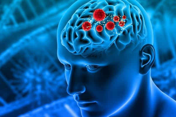 As complicações neurológicas devido à Covid-19