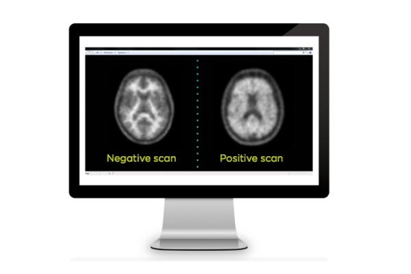 InsCer inicia estudo clínico de radiofármaco para Alzheimer