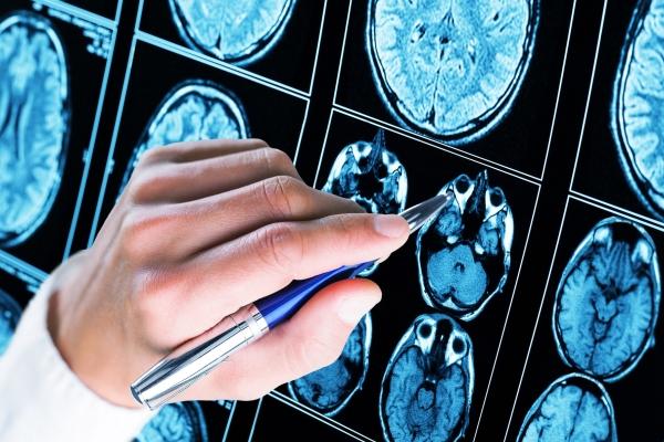 Estudo analisa chance de cura da COVID-19 em portadores de esclerose múltipla em tratamento